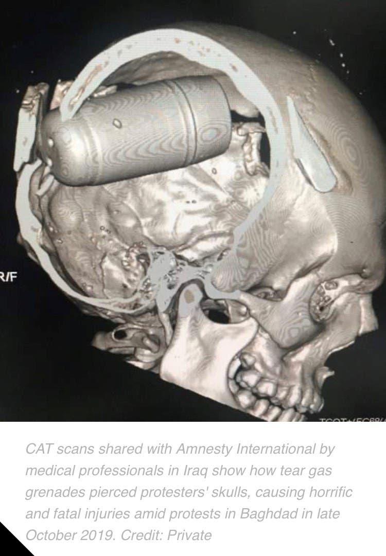 صورة نشرتها منظمة العفو لقنبلة مسيلة للدموع اخترقت جمجمة