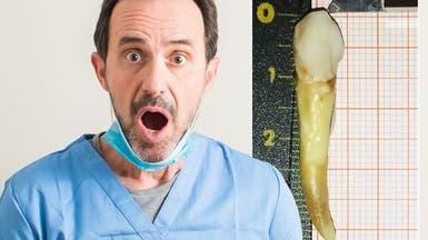 مرد کروات با بلندترین دندان رکورد گینس را شکست