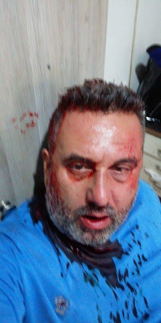 صورة متاولة للرجل الذي فتح النار على المحتجين في جل الديب