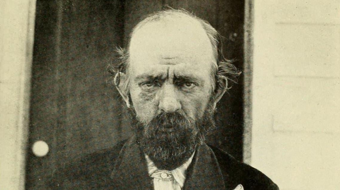 صورة لأميركي مصاب بالبلاجرا بالقرن الماضي