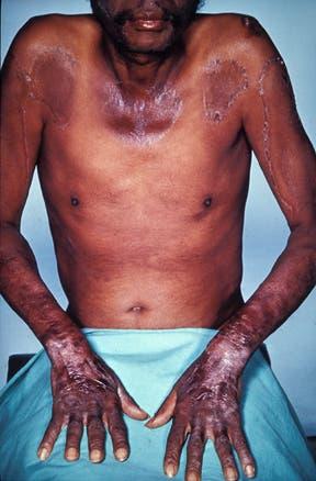 صورة لرجل مصاب بالبلاغرا