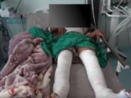 فيديو.. متسللون حوثيون تركوا مصاباً وأسعفته القوات المشتركة