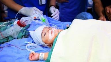 نجاح عملية فصل التوأم الليبي أحمد ومحمد بعد 13 ساعة بالعمليات
