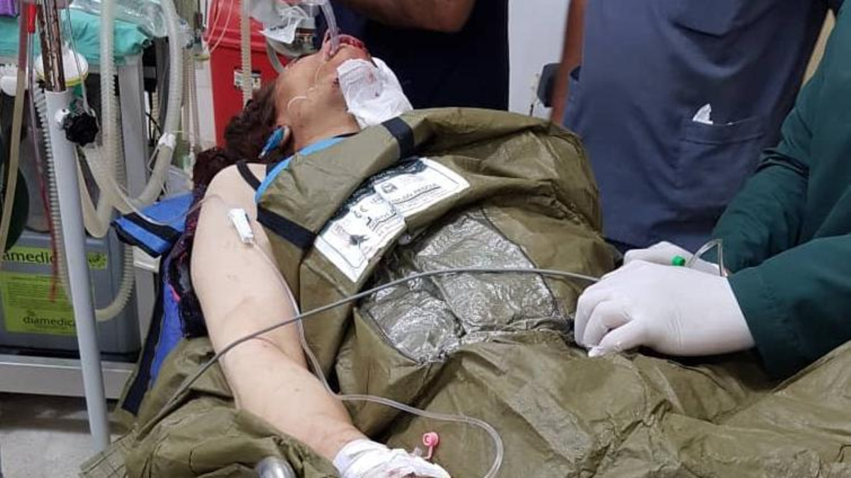 One of the women reportedly injured by the Turkish drone attack on Ayn al-Arab. (Twitter/@MHJournalist)