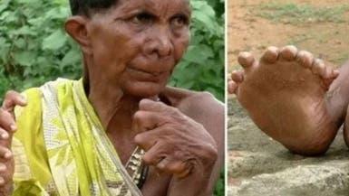 اعتقدوها ساحرة ..معاناة هندية بـ31 إصبع!