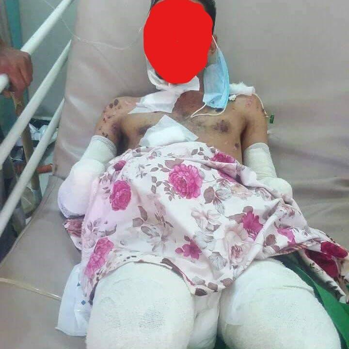 استهدفه داخل مزرعته.. مقتل مدني برصاص قناص حوثي في تعز