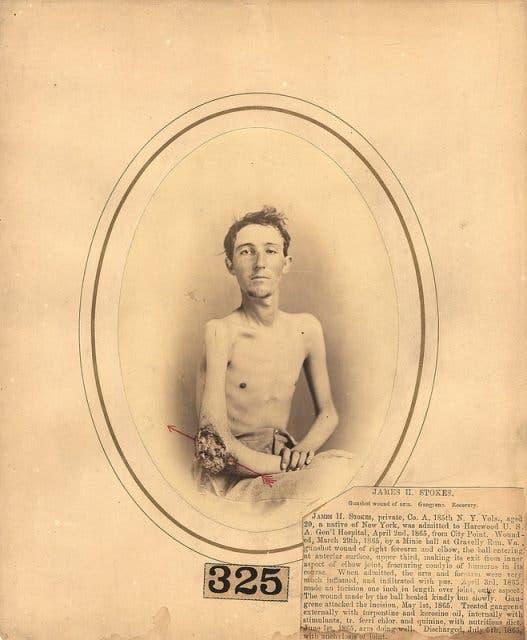 صورة للجندي جيمس ستوكس المصاب بالحرب الأهلية