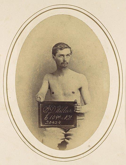 صورة لأحد المصابين بترت يده بالحرب الأهلية الأميركية