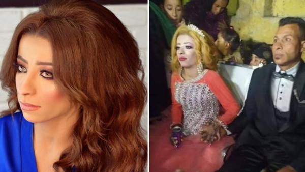 """مصرية تركها خطيبها بسبب """"التنمر"""" ووقعت المفاجأة!"""