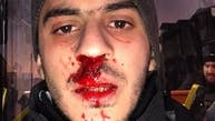 شاب مصري يتعرض للضرب في تركيا.. بسبب لغته العربية