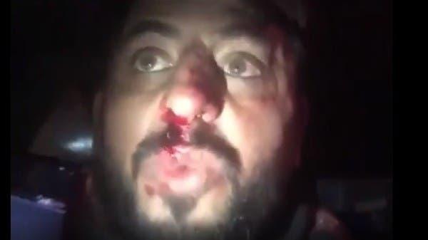 """متظاهر عراقي: """"شوفوا القبعات الزرق كسروا خشمي وطعنوني"""""""