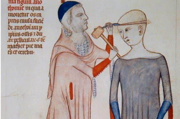رسم تخيلي لطبيب بالعصور الوسطى أثناء علاجه لمريض