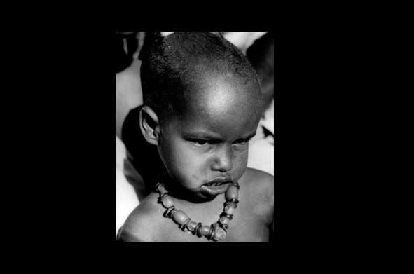 أمين سالات، آخر حالة مصابة بالجدري في إثيوبيا عام 1976