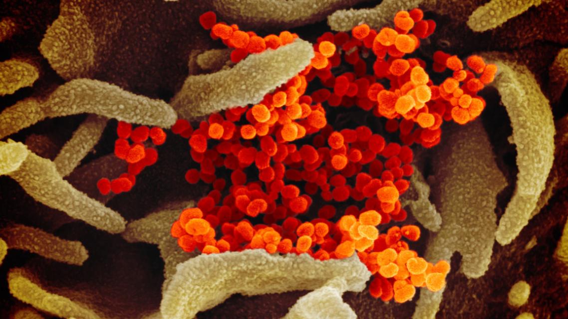 صور بالمجهر الإلكتروني من خلال المسح الضوئي لفيروس كورونا والتي نشرها باحثون أميركيون