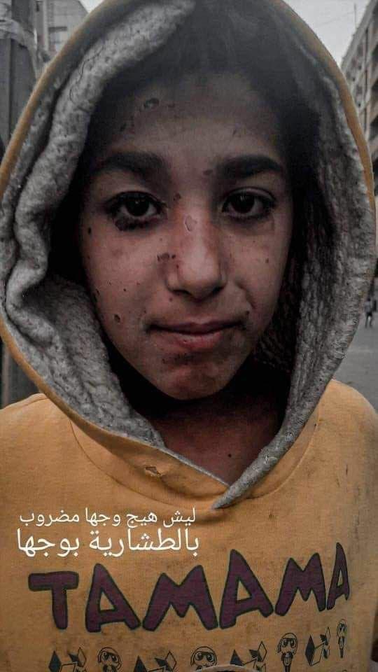 صور تداولها ناشطون عراقيون لأثر بنادق الصيد على المحتجين