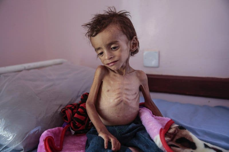 World Food Program: Tens of millions of people threatened with starvation