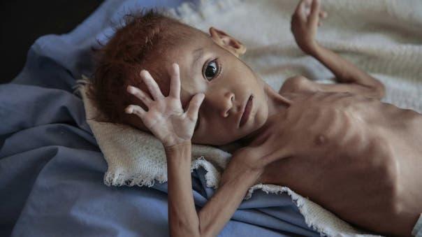 برنامج الغذاء العالمي: عشرات الملايين عرضة للمجاعة