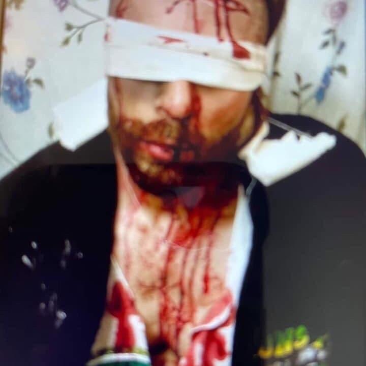الميليشيات تختطف مسعفاً ببغداد.. وترسل صور تعذيبه لعائلته