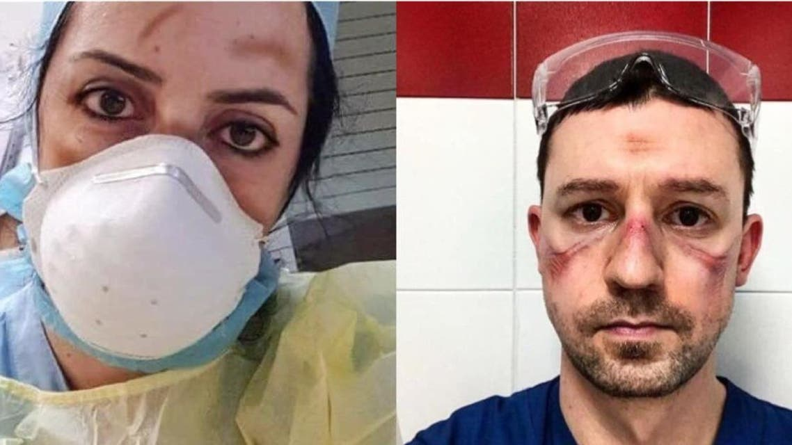 Italian nurses, doctors with bruises on their face. (Twitter)
