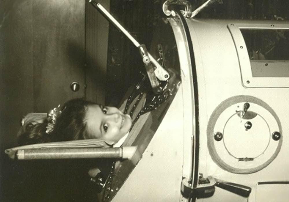 صورة لطفلة مصابة بالشلل أثناء تواجدها داخل آلة الرئة الحديدية