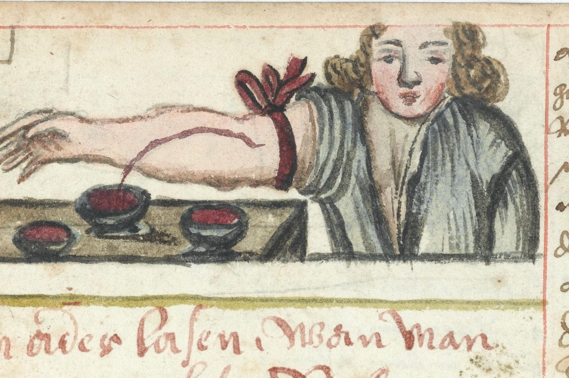 رسم تخيلي لإحدى عمليات الفصد بالعصور الوسطى