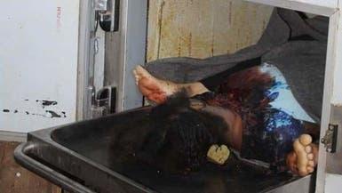 صور مؤلمة.. مجزرة حوثية بشعة بحق سجينات في تعز