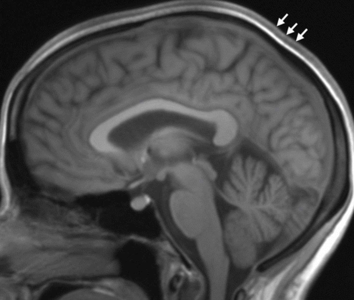 دماغ رائد فضاء