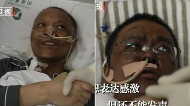 شاهد الاسوداد الغريب يظهر على بشرة أطباء هاجمهم كورونا