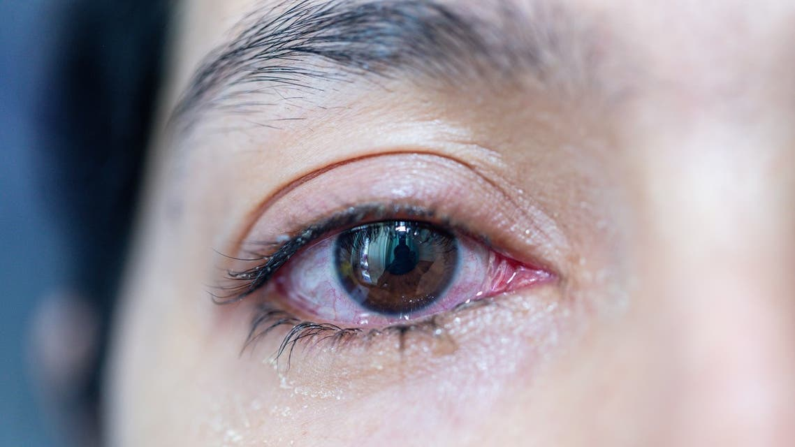A person with red eyes looks at the camera. (Shutterstock)