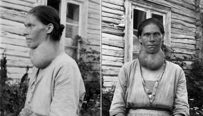 صورة لامرأة مصابة بتضخم الغدة الدرقية