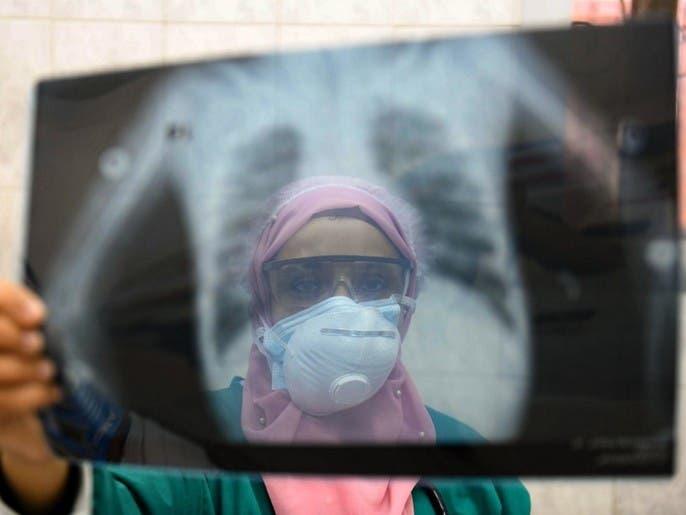مصر.. 126 إصابة جديدة بفيروس كورونا و11 وفاة