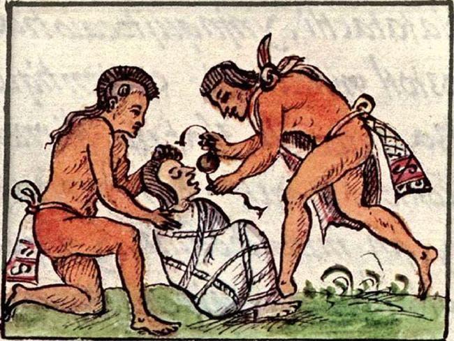 رسم تخيلي يجسد أحد المرضى من الأزتك
