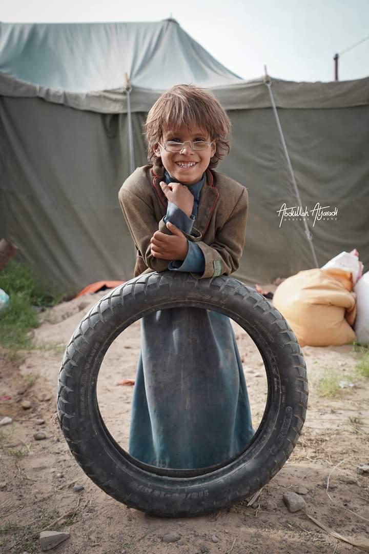 الطفل محمد الذي ينزح حالياً مع أسرته بمحافظة مأرب