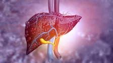 سابقة عالمية.. معالجة مرض بالكبد لدى طفل بخلايا جذعية جنينية
