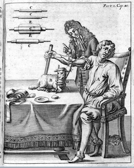 رسم تخيلي لأول عملية نقل دم لإنسان سنة 1667