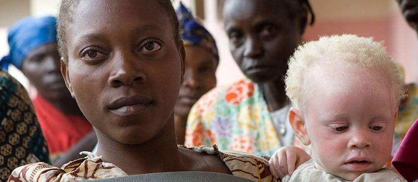 مصابون بالمرض في أفريقيا