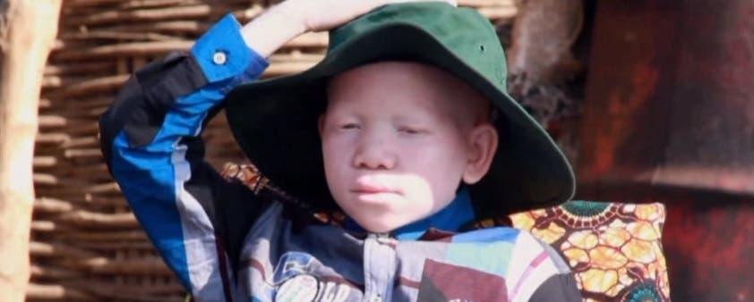 الطفل مويغولو قطعوا ذراعه في تنزانيا