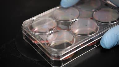 دراسة: طفرة في فيروس كورونا تزيد قدرته على إصابة الخلايا