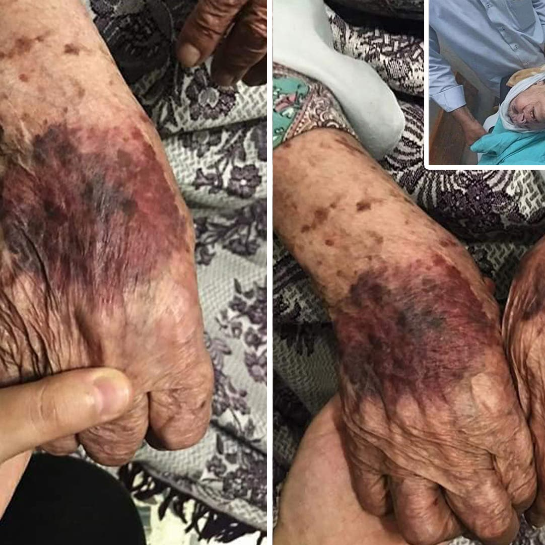 صور لإصابات مروعة لأم جبر وشاح تشعل غضب الشارع الفلسطيني
