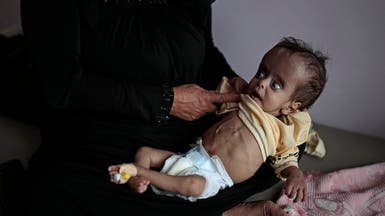 صور مأساوية من اليمن.. الجوع يلاحق الأطفال