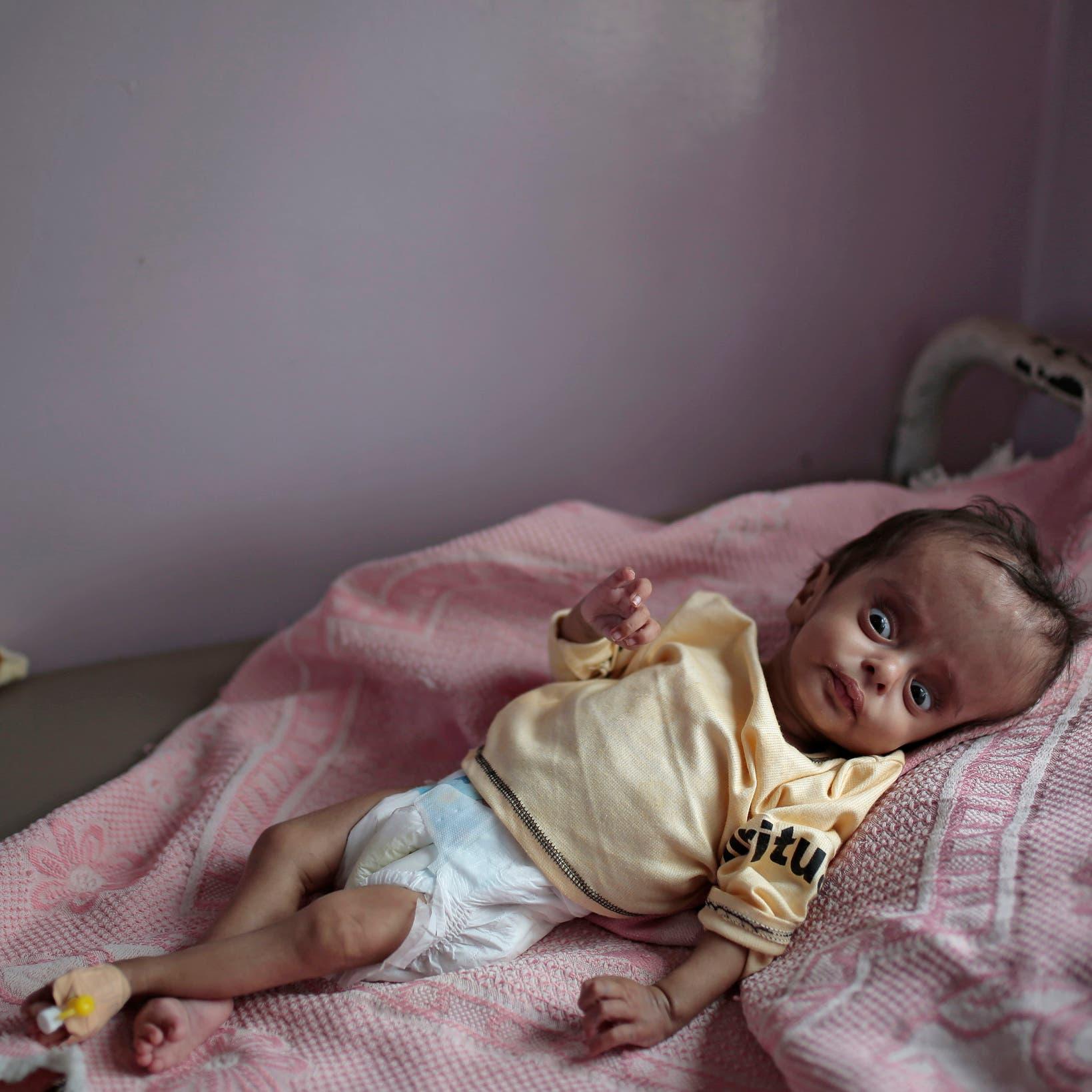 الجوع يلاحق أطفال اليمن مع قطع الأمم المتحدة برامج مساعدات