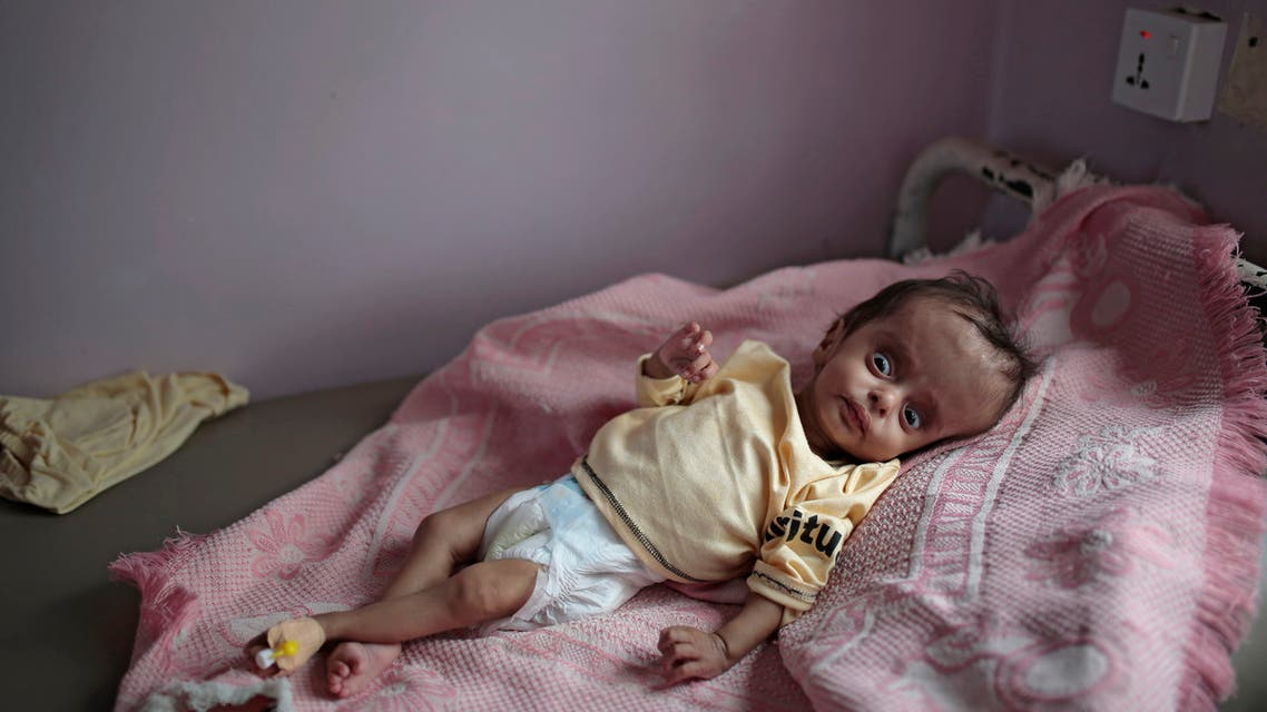 A malnourished boy lies in a bed waiting to receive treatment at a feeding center at Al-Sabeen hospital in Sanaa, Yemen, Saturday, June 27, 2020. (AP Photo/Hani Mohammed)
