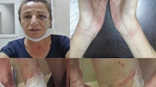 بالصور.. تعذيب سياسية معارضة يثير زوبعة في تركيا