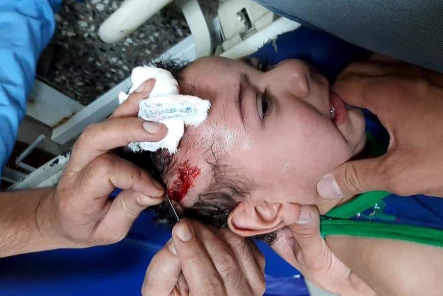 جرح طفل في الهجوم الصاروخي