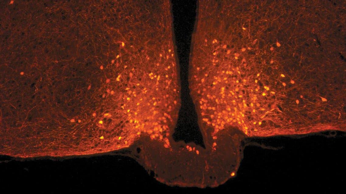 الخلايا العصبية POMC (النقاط البرتقالية) في منطقة ما تحت المهاد لدماغ الفأر. صورة مأخوذة باستخدام مجهر متحد البؤر