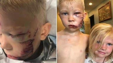 """طفل أنقذ شقيقته من كلب وتشوّه.. فسالت عليه رسائل """"الأبطال"""""""