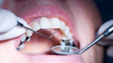 من هم أول من عرفوا حشوات الأسنان؟.. دراسة يونانية تجيب