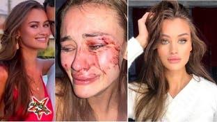 هكذا انتهت الحال بعارضة أزياء وهي تمضي عطلتها بتركيا