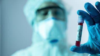 شركة عالمية تكشف.. هذا سعر جرعة اللقاح