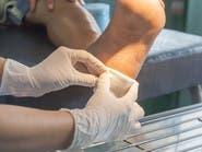 لقرحة القدم السكرية.. علاج من القرون الوسطى